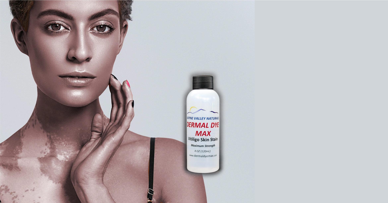 Alternative to Vitiligo makeup; Dermal Dye Max Vitiligo Treatment