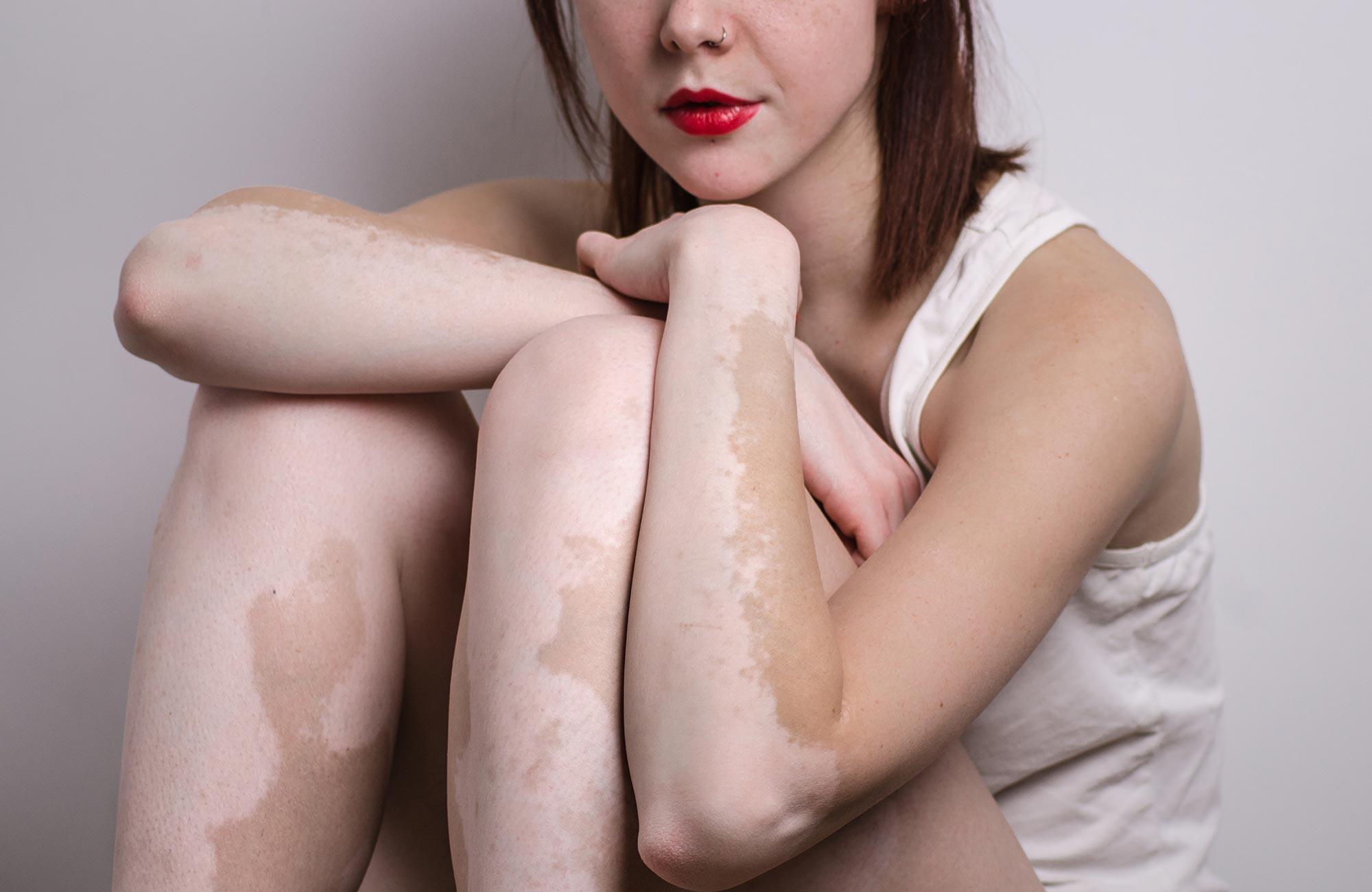Perfect alternative to vitiligo makeup: Dermal Dye Max Vitiligo Treatment