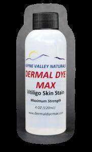 Best Vitiligo Treatment Available: Dermal Dye Max waterproof skin dye
