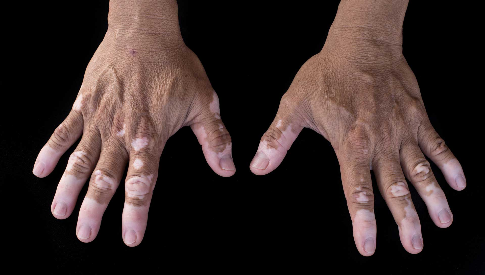 skin condition Vitiligo - Information for support groups, forums, research